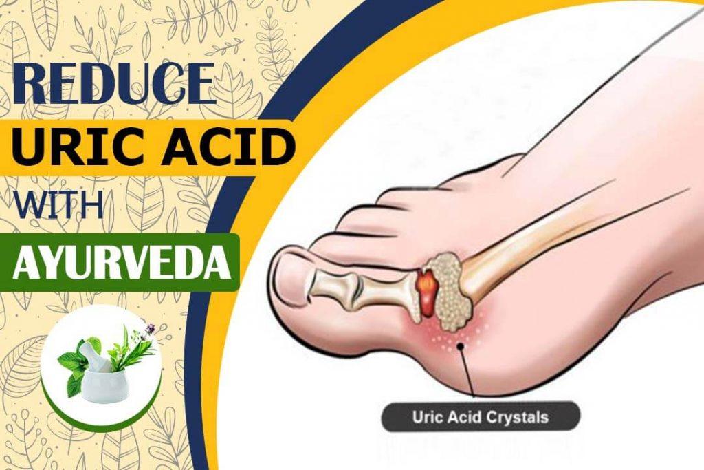 Best Ayurvedic Medicine For Uric Acid